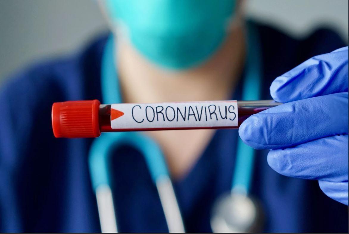 Azərbaycanda daha 63 nəfərdə koronavirus aşkarlandı