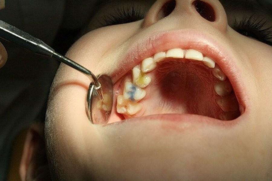 Что делать когда болит зубной нерв в  180